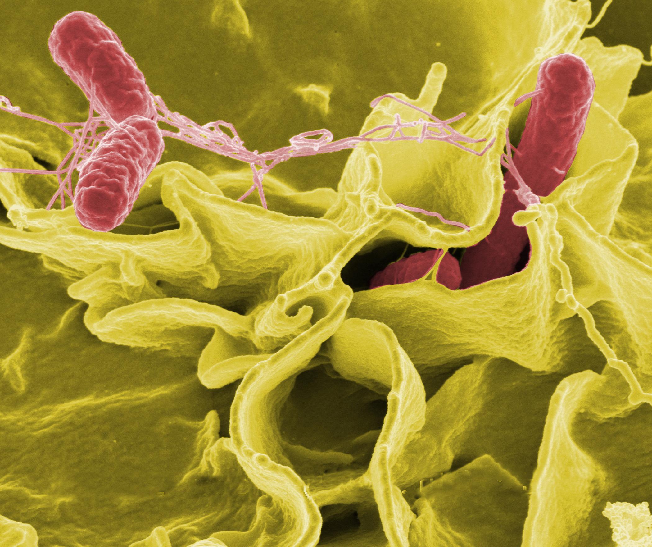 Enteritis Salmonella