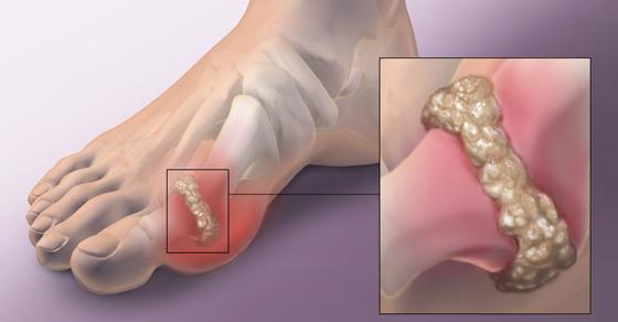 Gout Diabetes