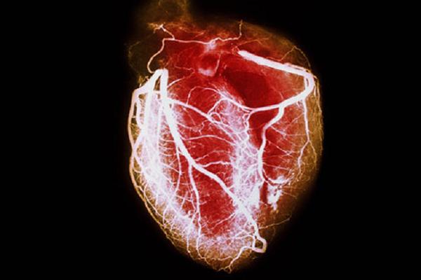 HEARTPROBLEMSFINAL