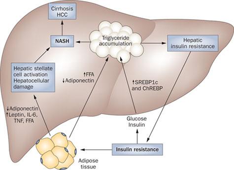 Non-Alcoholic Fatty Liver