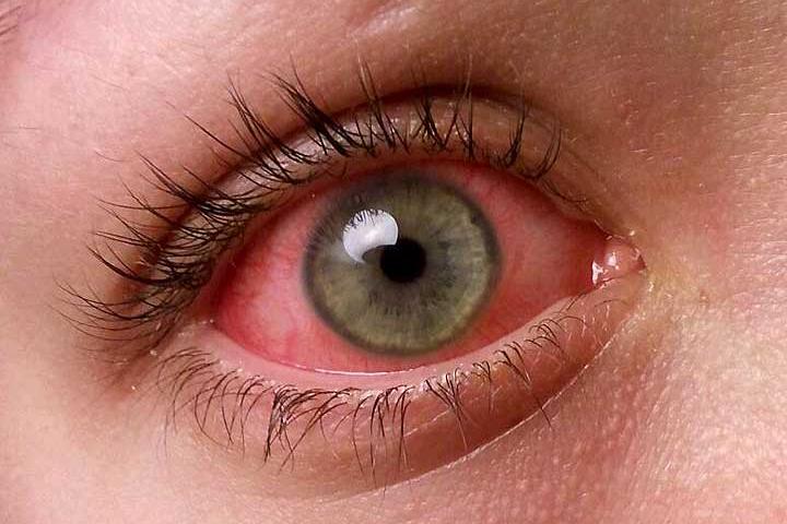 Pink-eye1final