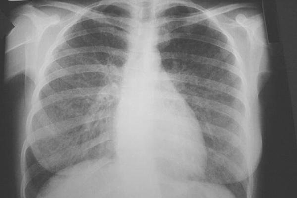 pneumonitisfinal